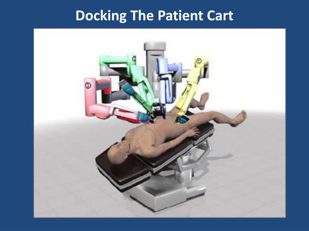 Docking The Patient Cart