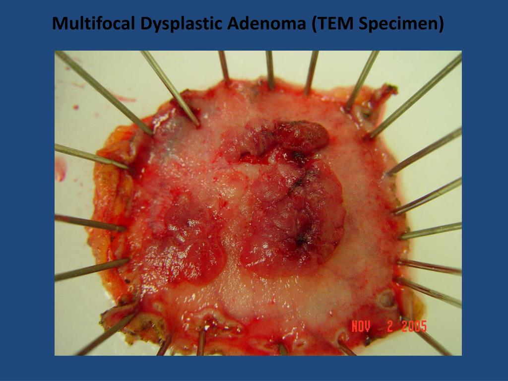 Multifocal Dysplastic Adenoma (TEM Specimen)