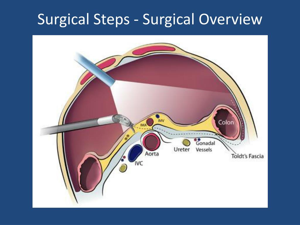 Surgical Steps - Surgical Overview