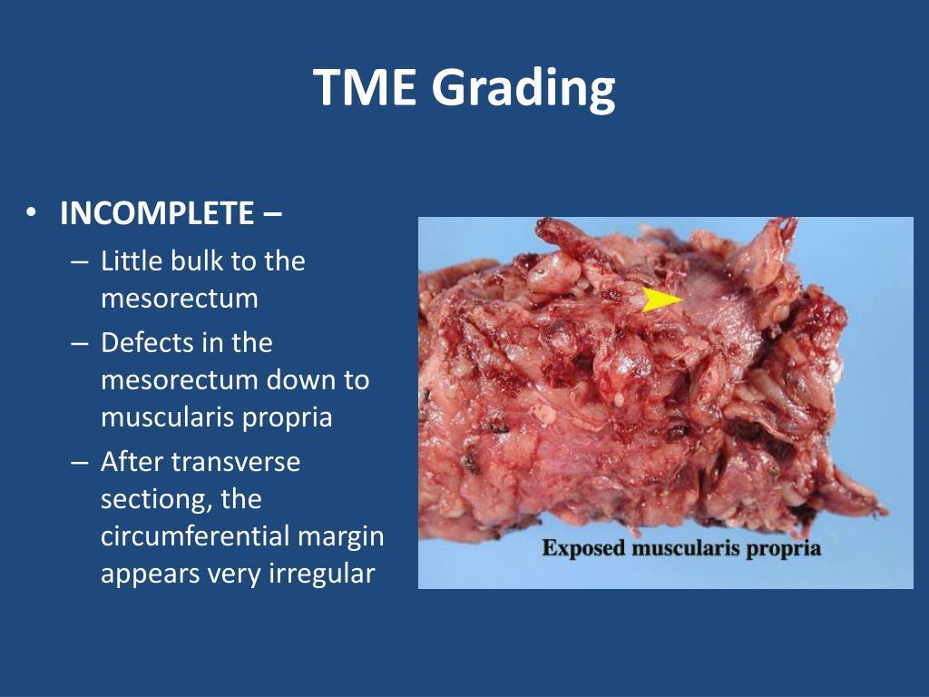 TME Grading