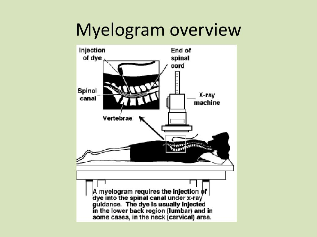 Myelography And Cns Exams Using Mri Ct further 9928843 further 1466 likewise 5687624 moreover 8453894. on pacemakers ppt