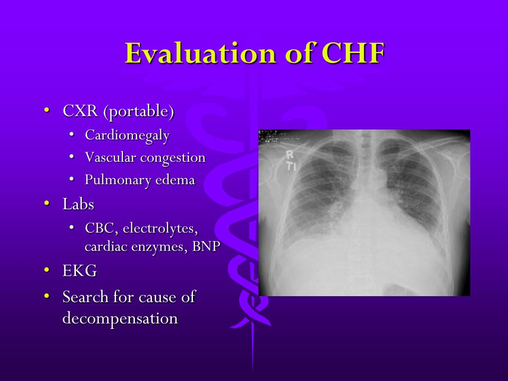 Evaluation of CHF