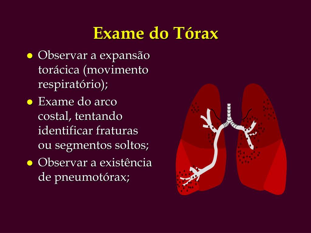 Exame do Tórax