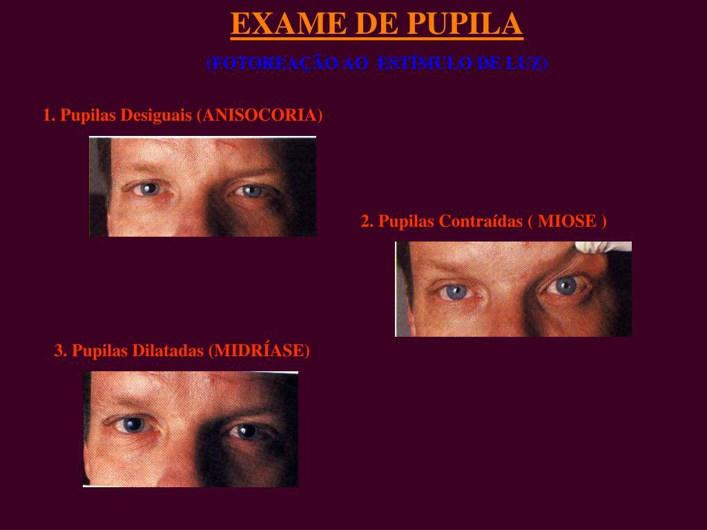 EXAME DE PUPILA