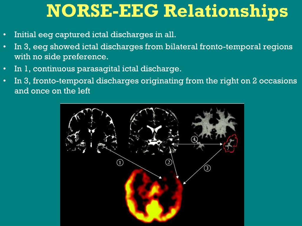 NORSE-EEG Relationships