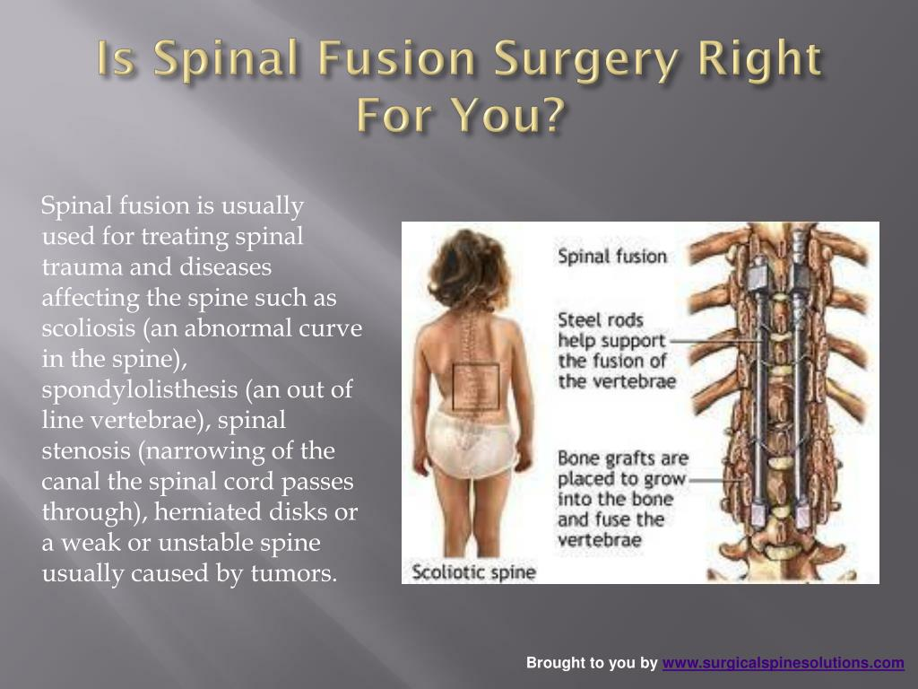 Is Spinal Fusion Surgery Right For You?