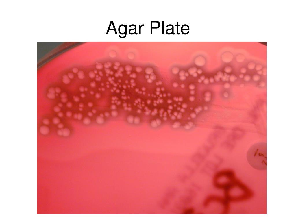 Agar Plate