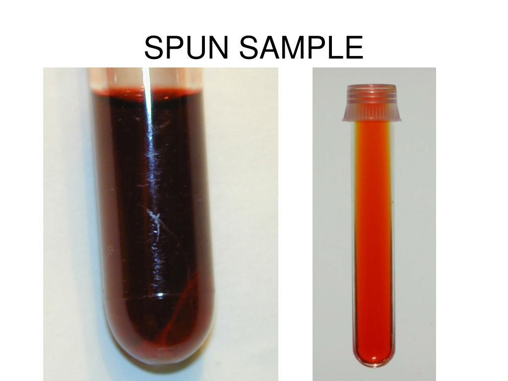 SPUN SAMPLE