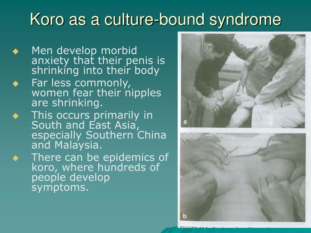 Koro as a culture-bound syndrome