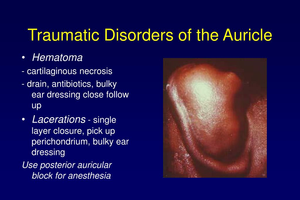 Traumatic Disorders of the Auricle