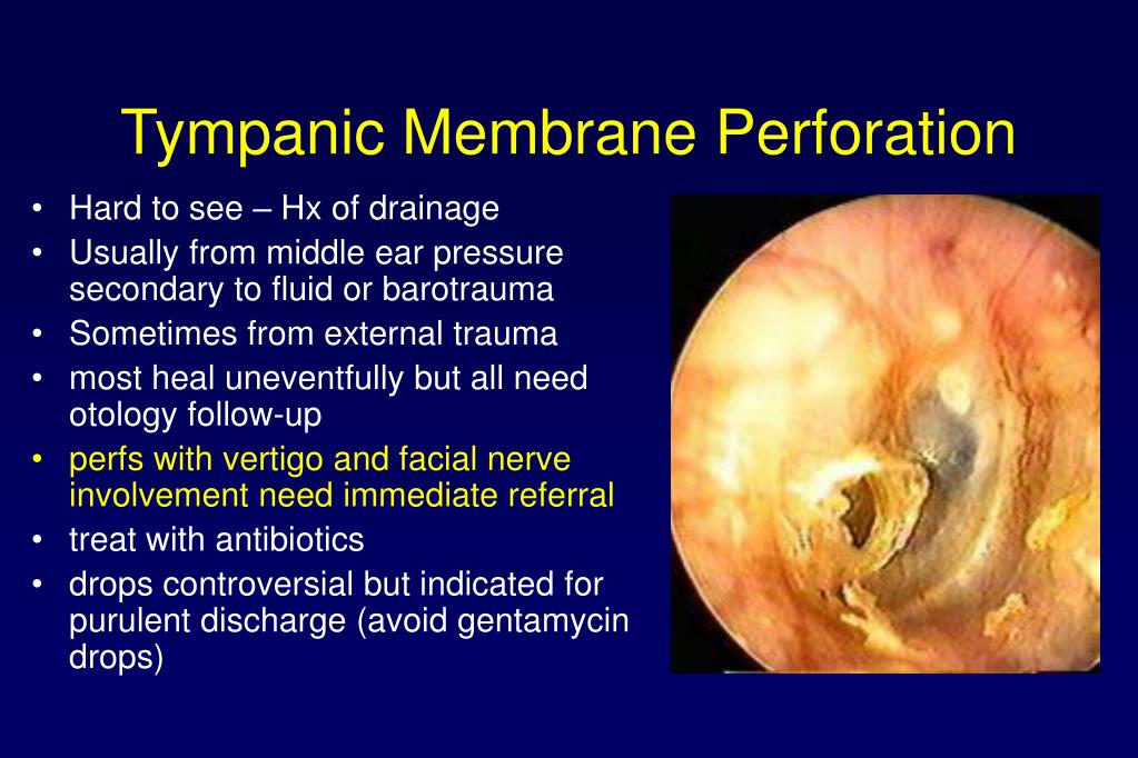 Tympanic Membrane Perforation
