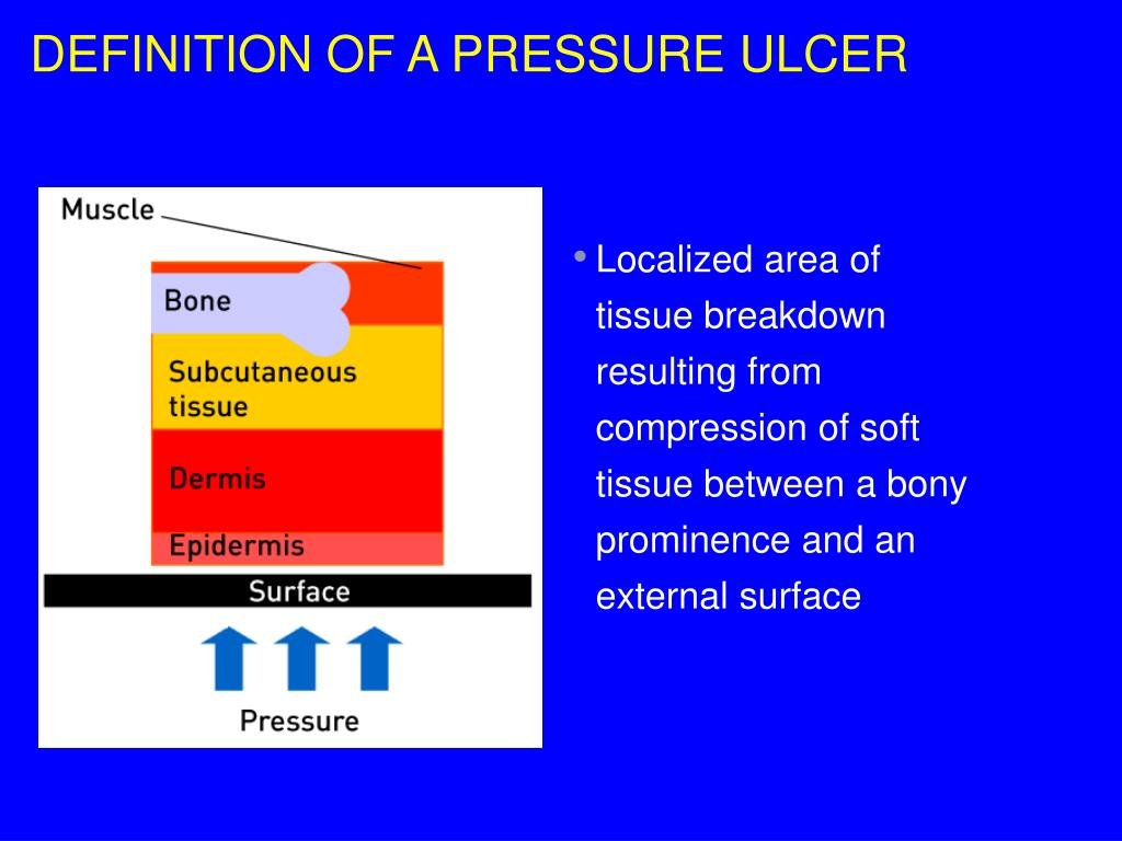 DEFINITION OF A PRESSURE ULCER