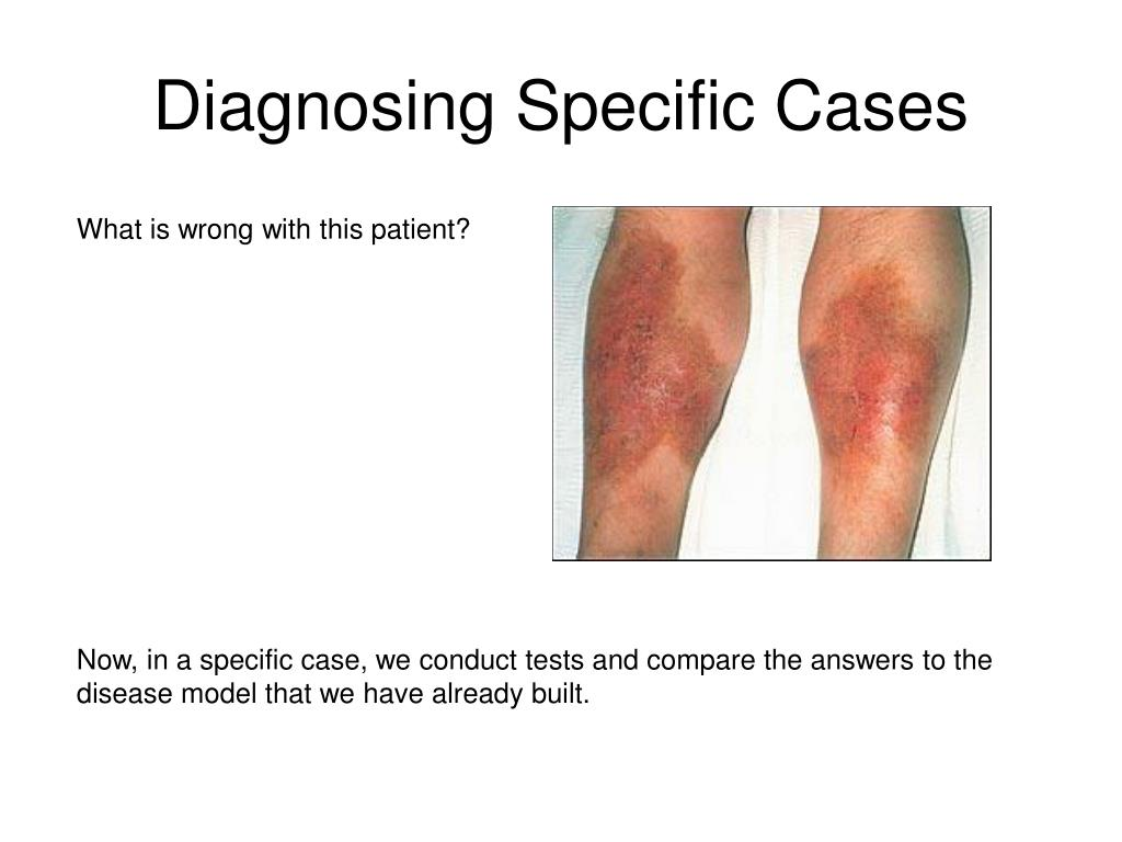 Diagnosing Specific Cases