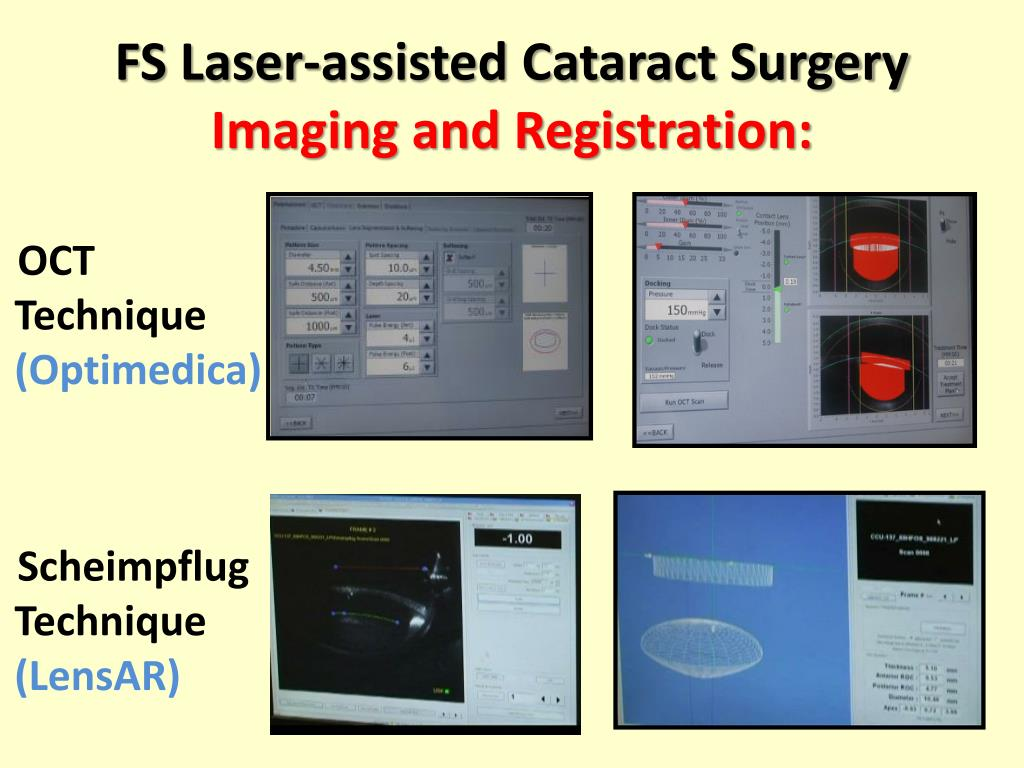 FS Laser-assisted Cataract Surgery