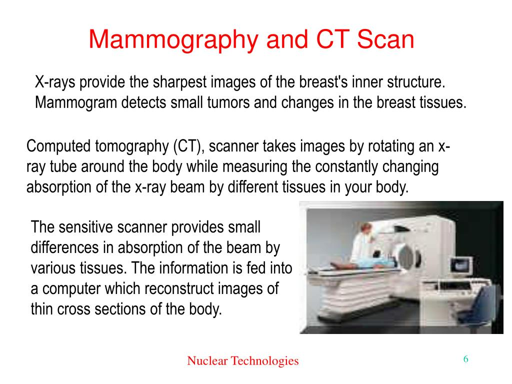 Mammography and CT Scan
