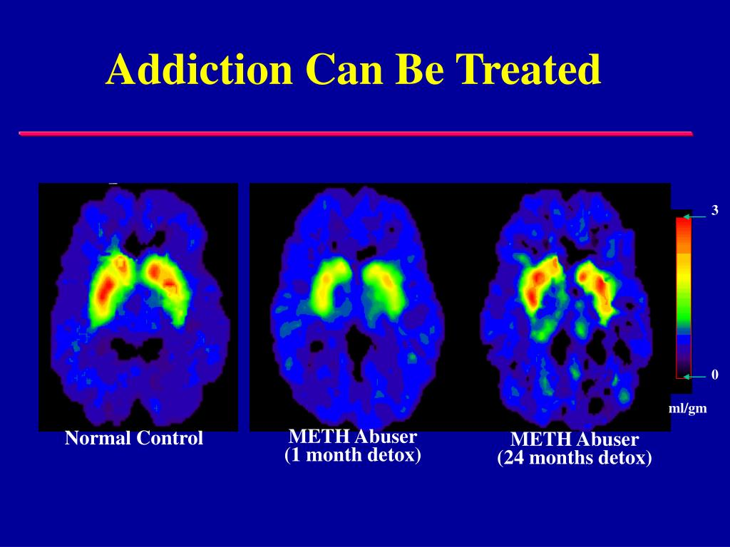 Addiction Can Be Treated