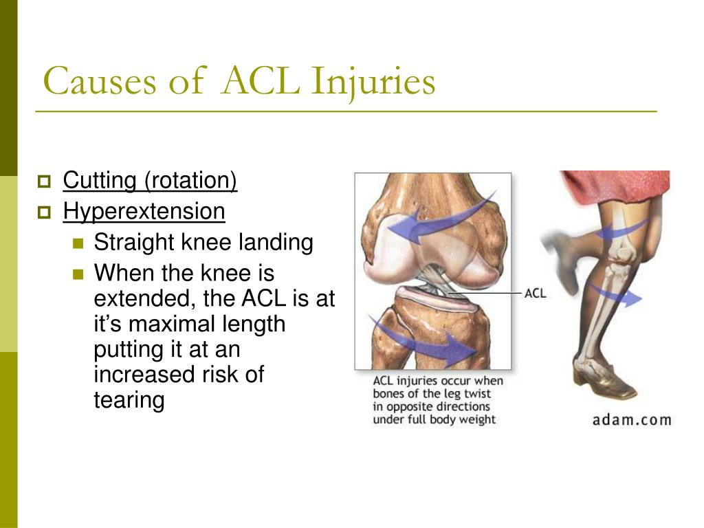 the common causes of the meniscus knee injury Treatment for a meniscus tear will cause your knee pain to improve and your meniscus tear to heal there's no doubt that to heal meniscus tears quickly you need bfst treatments coldcure will help with meniscus pain you can cure meniscus pain and a meniscus tear with bfst and coldcure technology treat your meniscus tear with rest and bfst and coldcure the best meniscus tear.