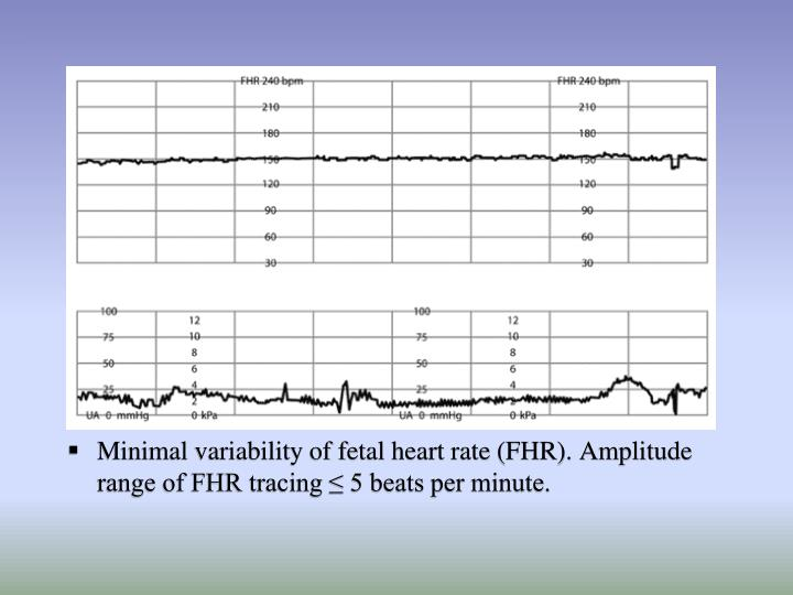 Minimal variability of fetal heart rate (FHR). Amplitude range of FHR tracing ≤ 5 beats per minute.