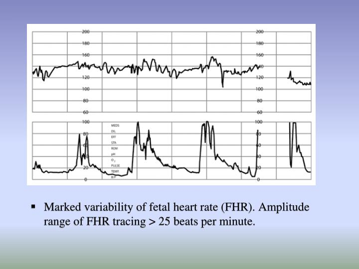Marked variability of fetal heart rate (FHR). Amplitude range of FHR tracing > 25 beats per minute.
