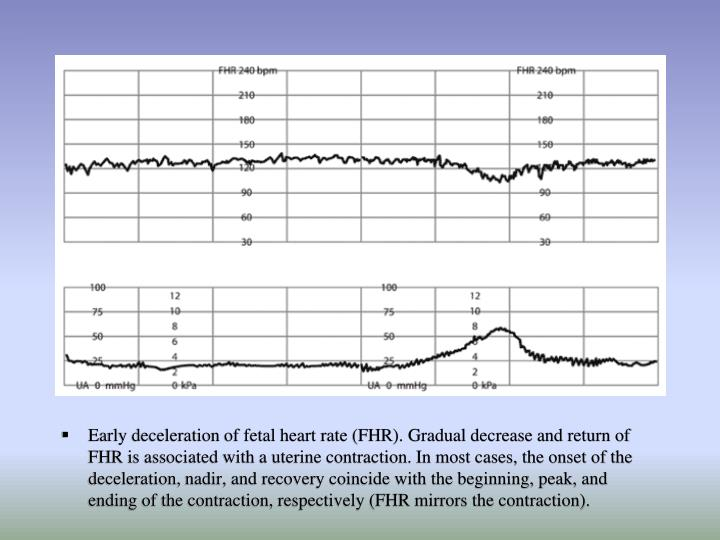 Early deceleration of fetal heart rate (FHR). Gradual decrease and return of FHR is associated with a uterine contraction. In most cases, the onset of the deceleration, nadir, and recovery coincide with the beginning, peak, and ending of the contraction, respectively (FHR mirrors the contraction).
