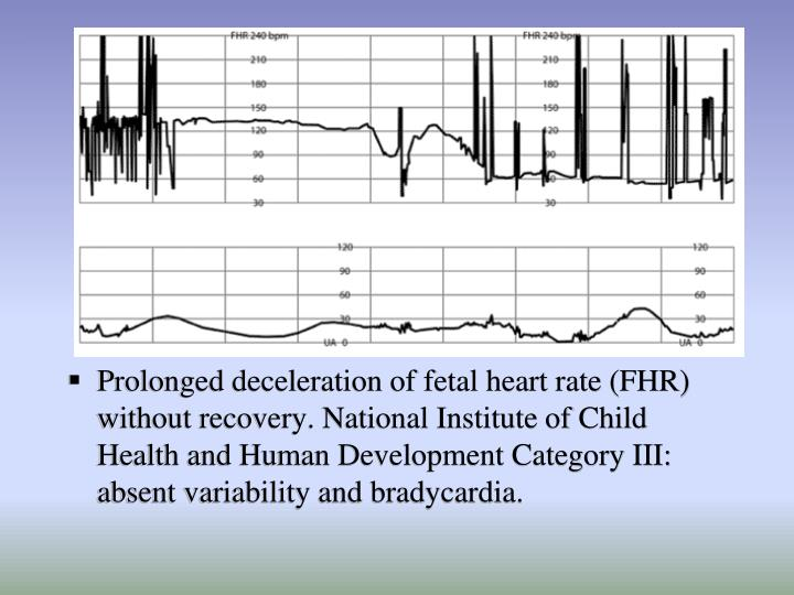 Prolonged deceleration of fetal heart rate (FHR) without recovery. National Institute of Child Health and Human Development Category III: absent variability and bradycardia.