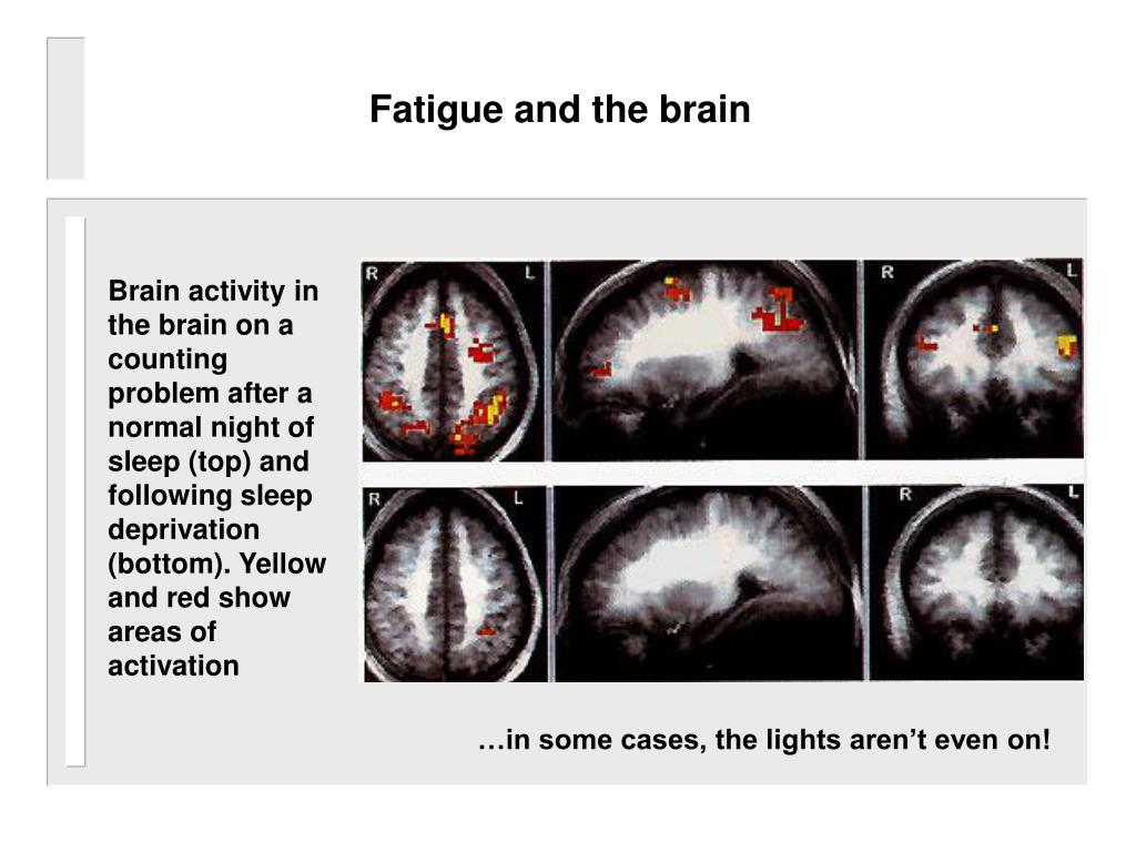 Fatigue and the brain