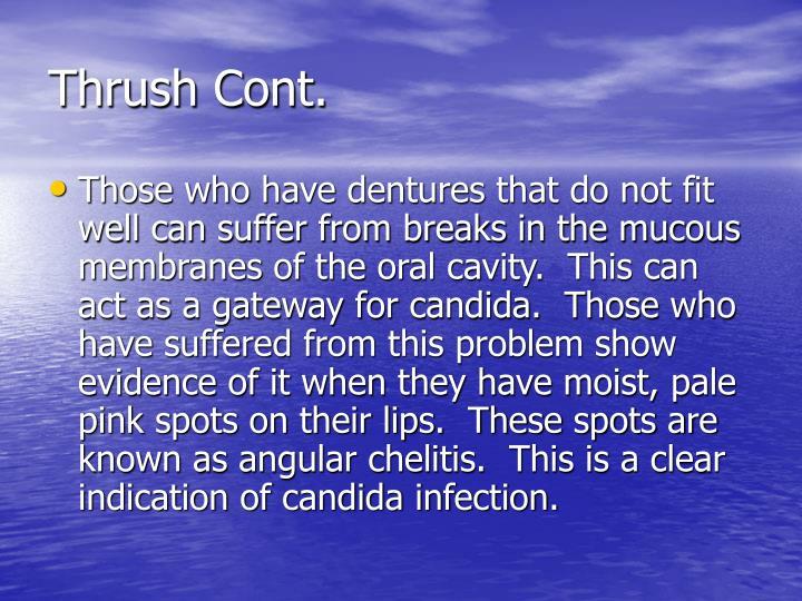 Thrush Cont.