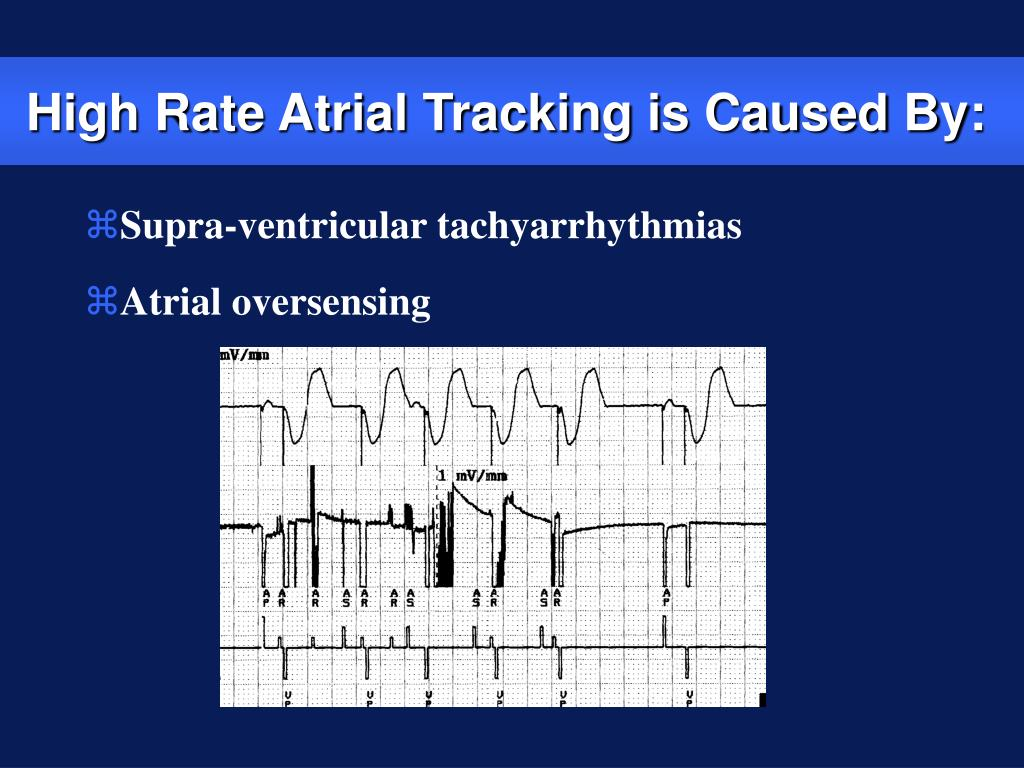 High Rate Atrial Tracking is Caused By: