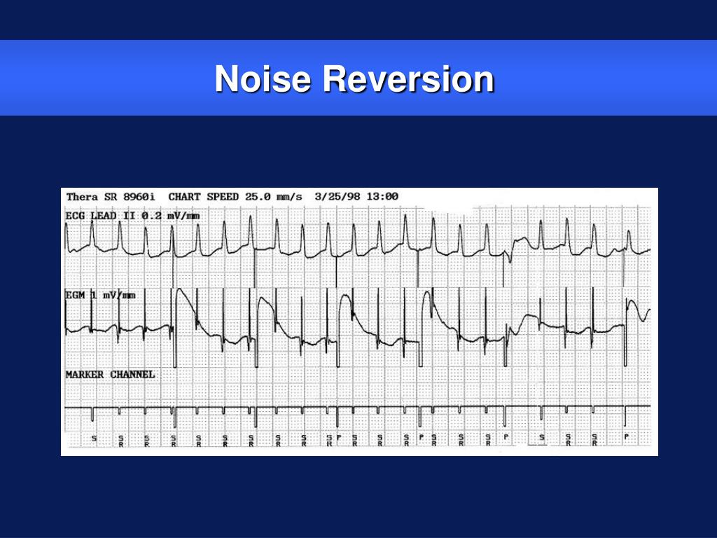 Noise Reversion