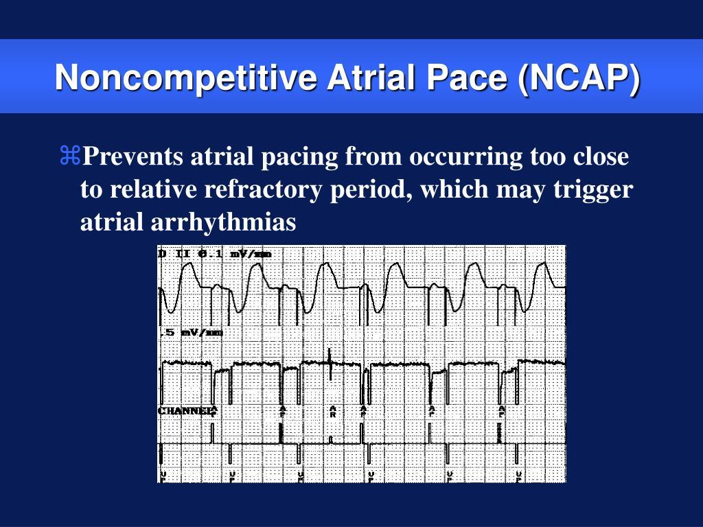 Noncompetitive Atrial Pace (NCAP)