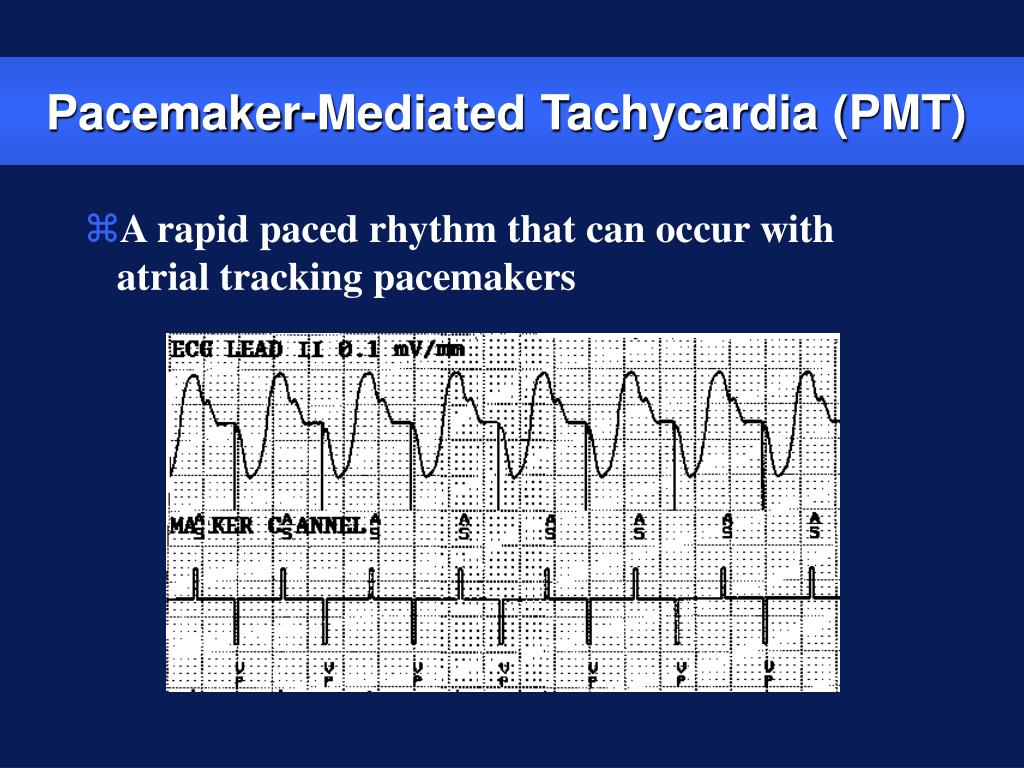 Pacemaker-Mediated Tachycardia (PMT)
