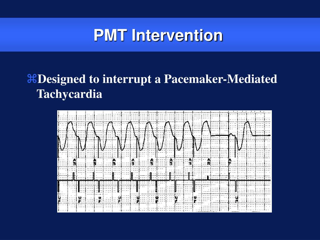 PMT Intervention