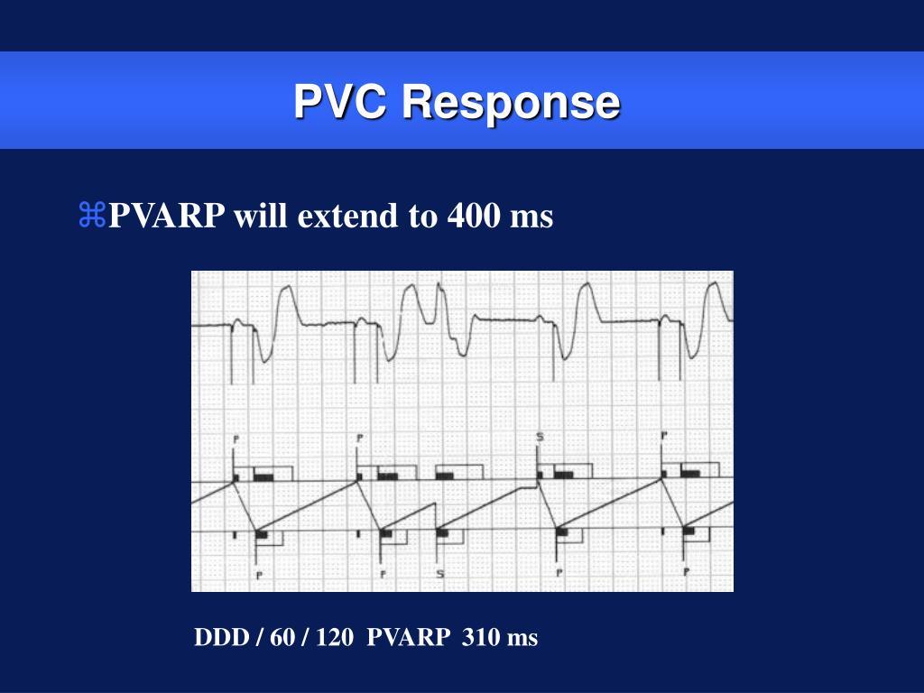PVC Response