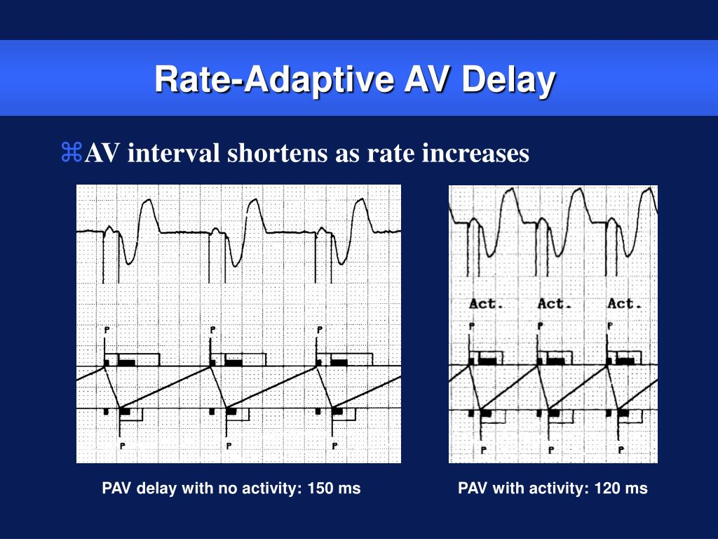 Rate-Adaptive AV Delay