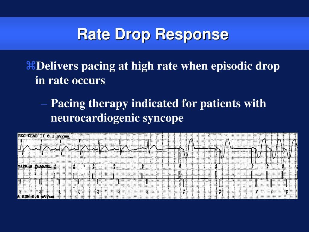 Rate Drop Response