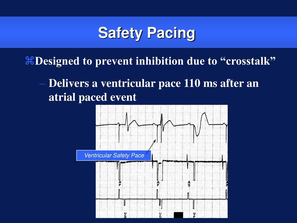 Ventricular Safety Pace