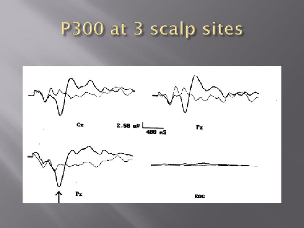 P300 at 3 scalp sites