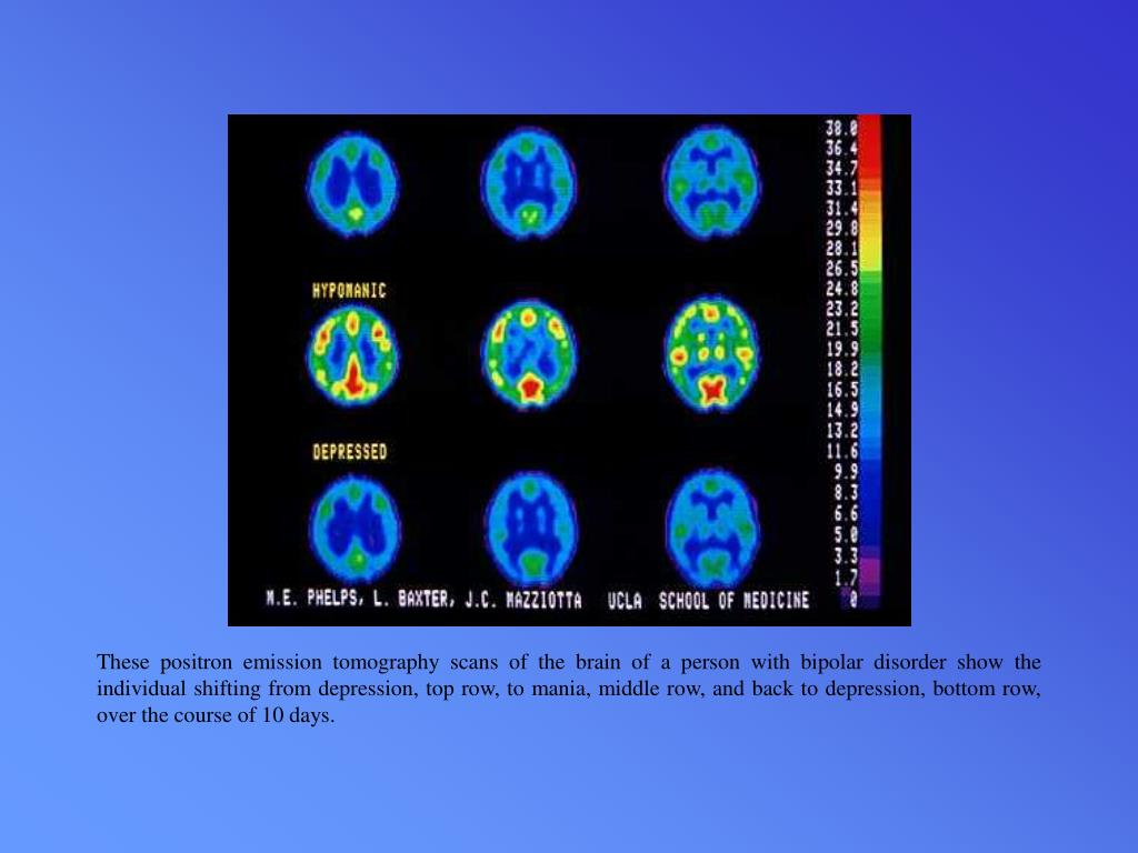 These positron emission tomography scans of the brain of a person with bipolar disorder show the individual shifting from depression, top row, to mania, middle row, and back to depression, bottom row, over the course of 10 days.