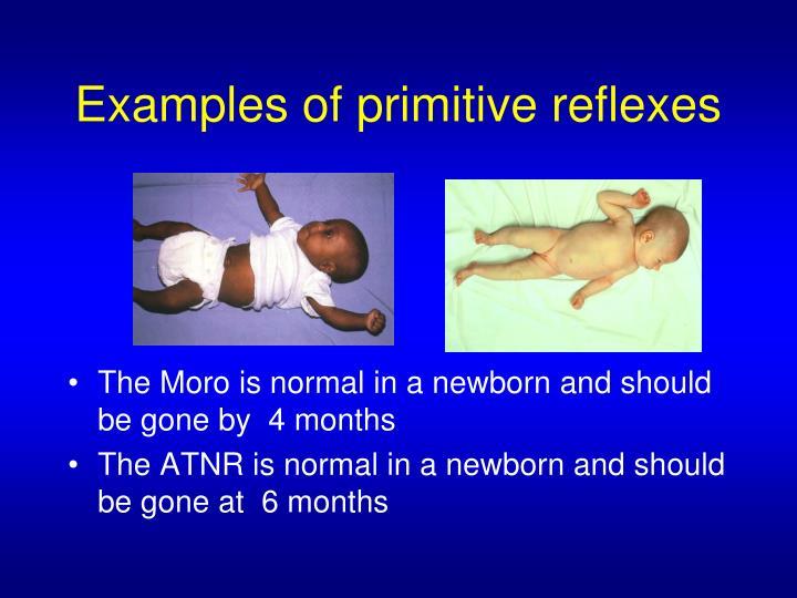 Examples of primitive reflexes