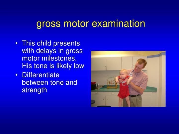 gross motor examination