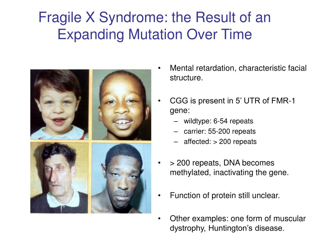 Fragile X Syndrome: the Result of an Expanding Mutation Over Time