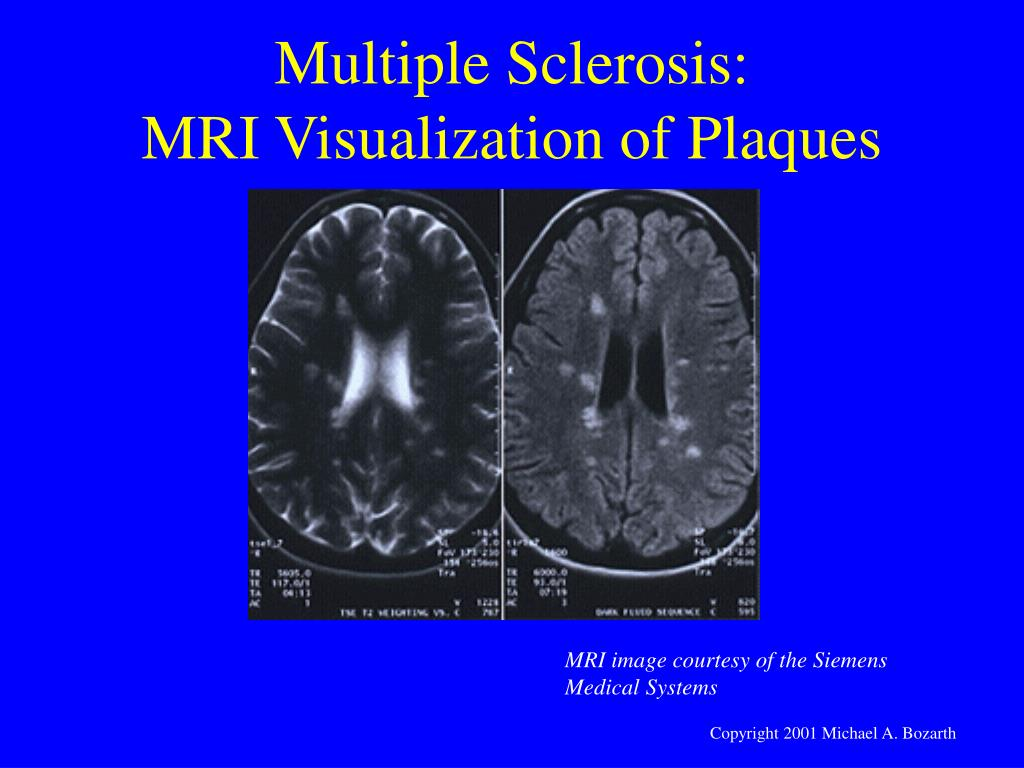 Multiple Sclerosis: