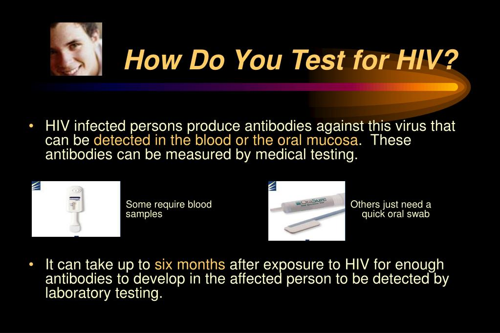 How Do You Test for HIV?