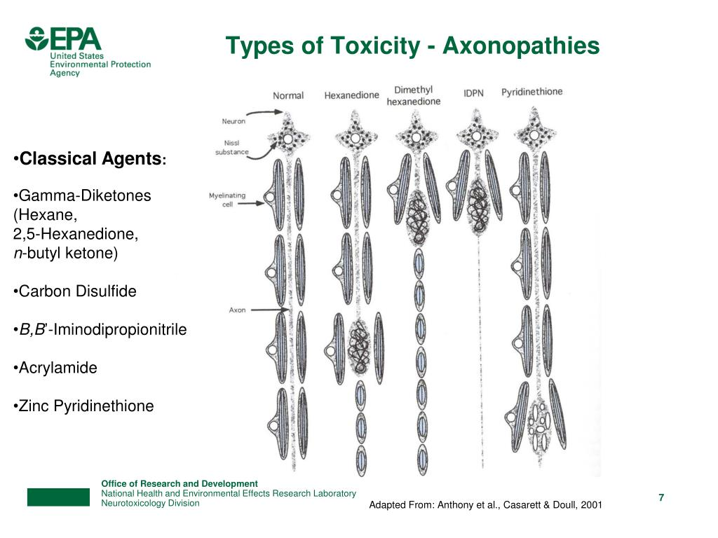 Types of Toxicity - Axonopathies