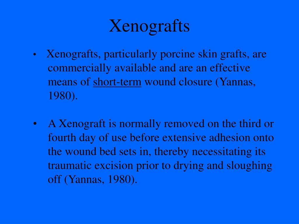 Xenografts