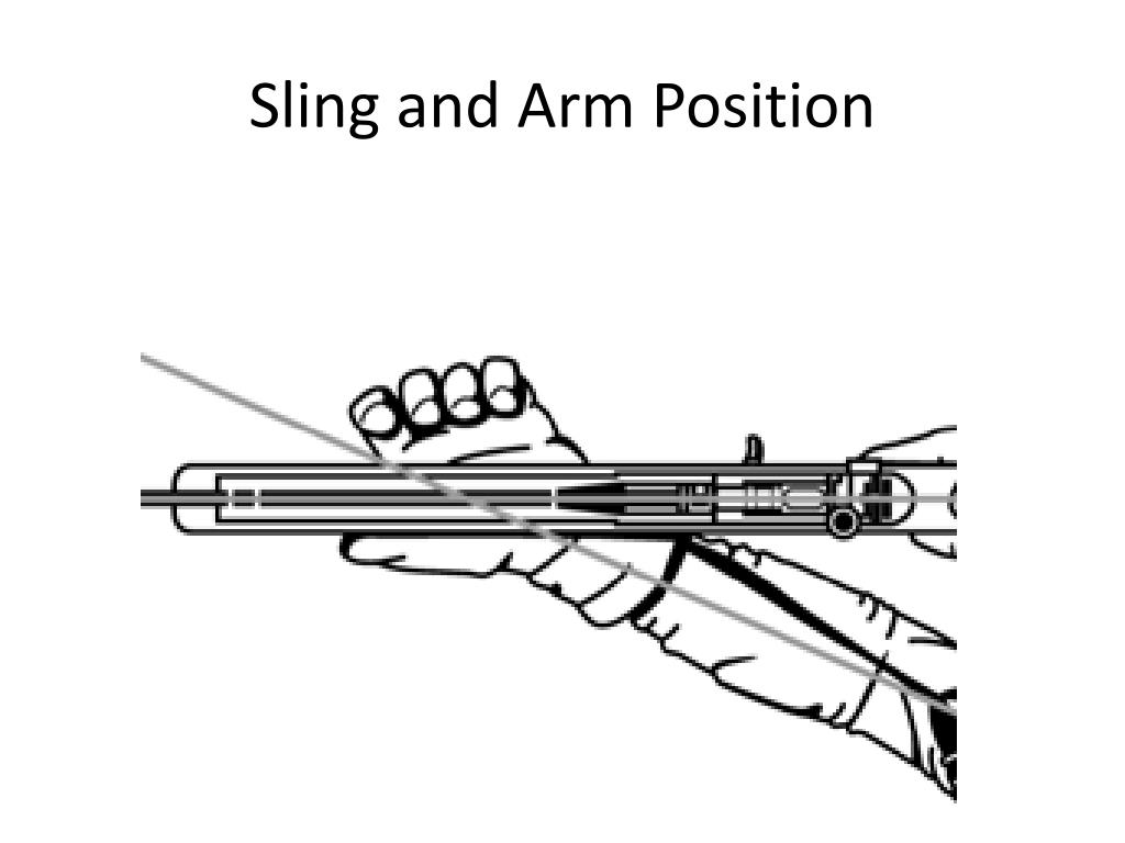 Sling and Arm Position