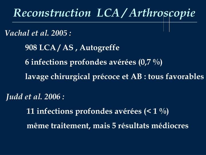 Reconstruction  LCA / Arthroscopie