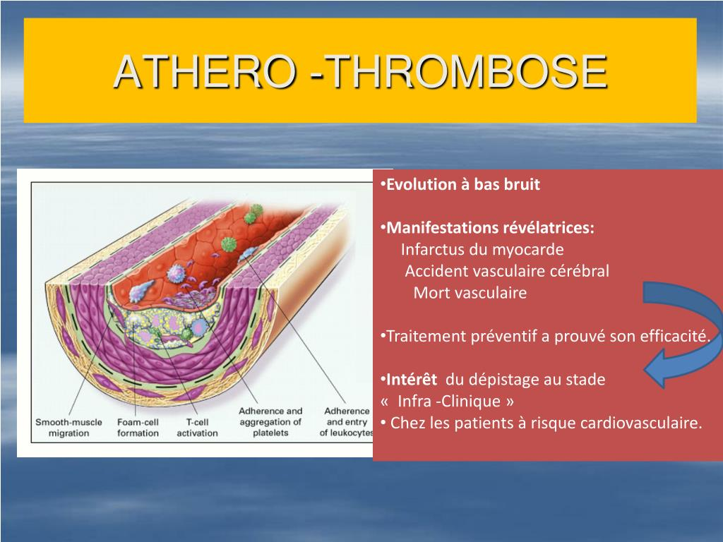 ATHERO -THROMBOSE