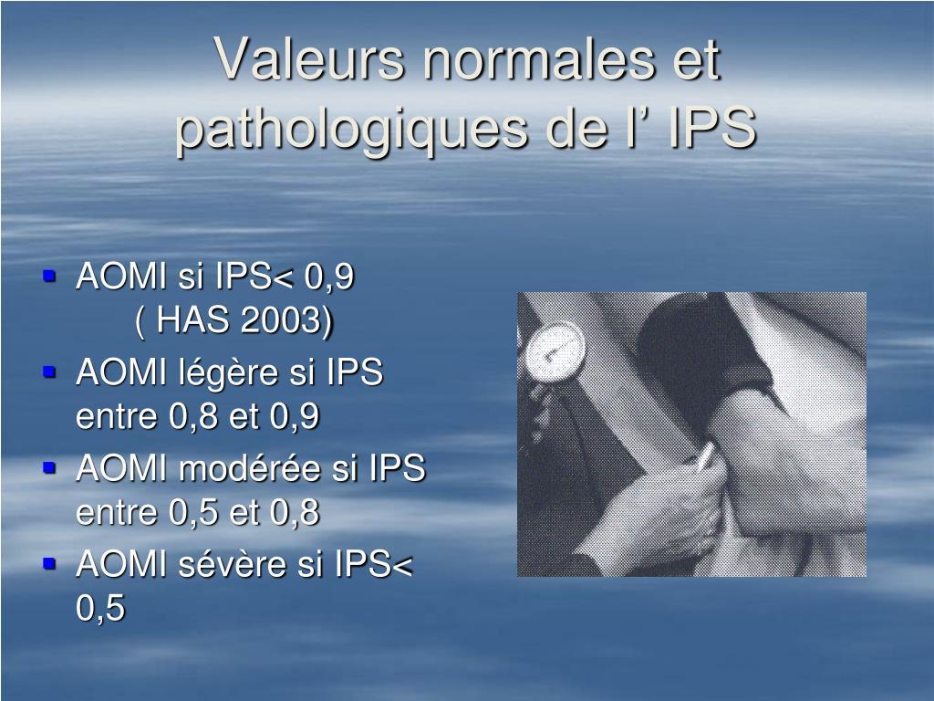 Valeurs normales et pathologiques de l' IPS