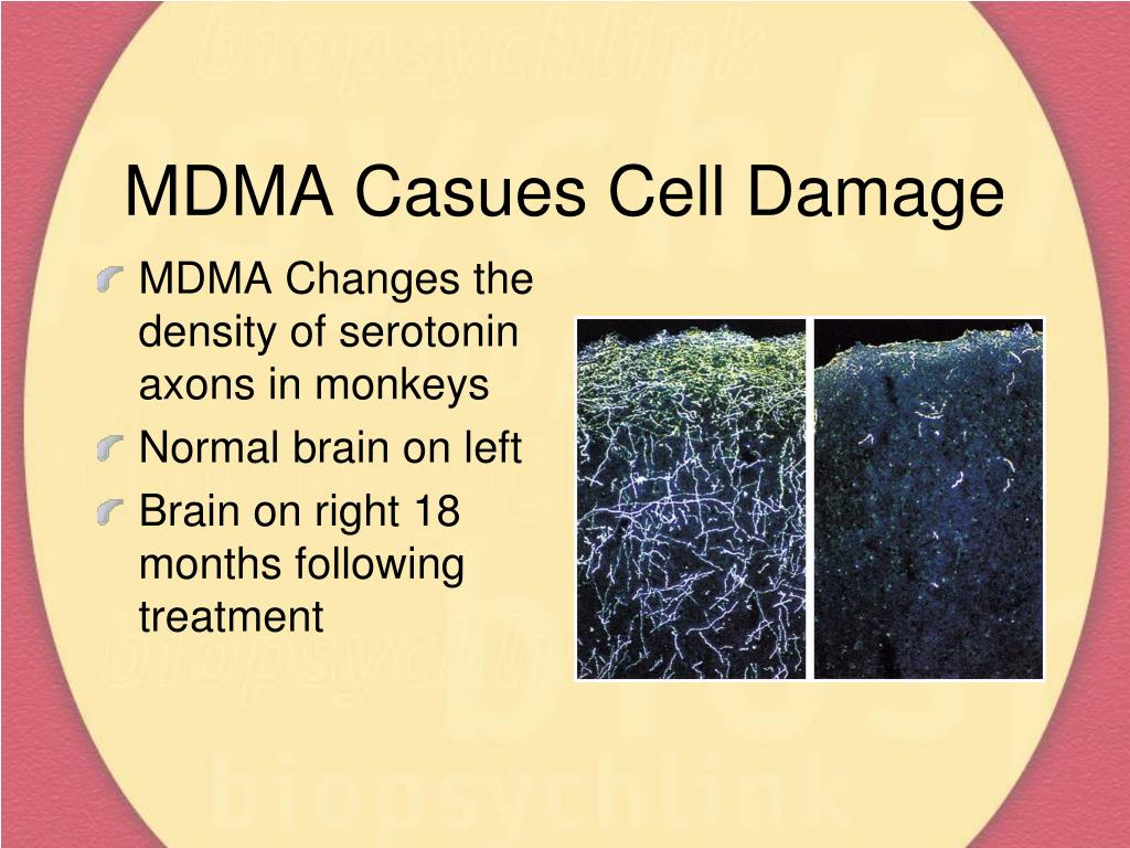 MDMA Casues Cell Damage